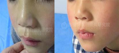 小男孩鼻部白斑,如今顺利祛除